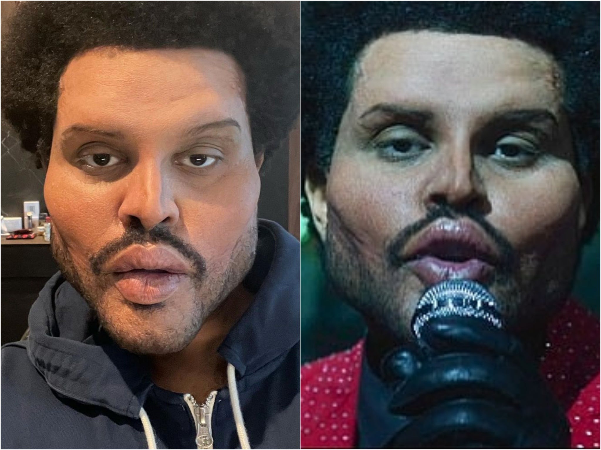 What happened to The Weeknd's face? Singer removes bandages to reveal 'creepy' plastic surgery prosthetics for new video